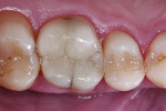 Post-treatment result. The direct composite restoration blends in well to the surrounding hard dental tissue.