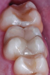 Final result from mesial view.