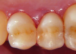 Finished restorations after occlusal adjustment.