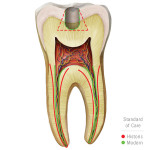 Visit Brasseler USA's Restorative Endodontics website at www.restorativeendo.com