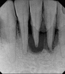 Case 2 pretreatment radiograph showing more than 9-mm probing depth on all aspects of teeth Nos. 24 and 25.