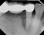 Case 1 pretreatment radiograph showing 12-mm probing depth on the distal aspect of tooth No. 29.