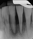 Case 2 post-treatment radiograph showing 3-mm probing depths circumferentially at 7-month follow-up.