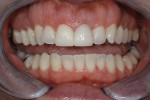 The patient was pleased with the esthetics of the provisionals.