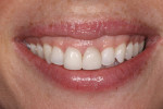 The patient was unhappy with the appearance of her existing veneers on teeth Nos. 8 and 9.