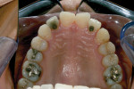 Pretreatment occlusal view, maxilla.