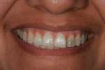 Pretreatment full smile.
