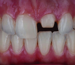 Fig 2 and Fig 3. It is merely a matter of a matching the color, value, texture, and form to surrounding natural dentition.
