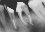 Figure 9  View of the periapical lesions present that are associated with lower premolar and molar, which were obturated with the Resilon system upon completion of endodontic treatment. (Courtesy of Dr. Joseph Maggio)