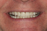 Figure 23 Postoperative photograph of the successful new smile.