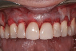 Figure 3 The ADM was inserted into the mucogingival tunnel using access areas between teeth Nos. 5 to 6 and 11 to 12.