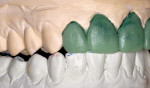 Figure 5  Using the wax-up, care was taken to maintain occlusal harmony in all excursive pathways.