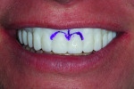 Fig 12. To indicate changes necessary for correcting the patient's gummy smile, the 3D prototype was marked and returned to the laboratory for processing.