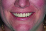 Close-up view of the patient's smile following implant placement and delivery of the final digital dentures.