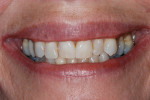 Figure 5 Gingival levels exposed with a normal smile.