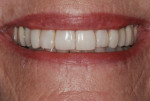Figure 14 Direct composite resin veneers, after 6.5 years of service.