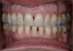 Figure 7 Tooth alignment after completed orthodontic treatment.