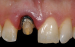 Figure 3 Proper axial-gingival reduction was completed, and initial gingival margin was placed coronal to the CEJ of adjacent central incisor.