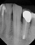 The 6-month recall radiograph shows complete healing of the apex.