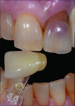 Fig 1 and Fig 2. A veneer preparation had an undesirable abutment color due to previous trauma to the tooth.