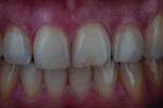 Fig 7. A patient had a chip to the incisal edge of tooth No. 9 with a slight but distracting discoloration.