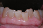 Unwanted tooth movement is a sign of instability in the dentition.