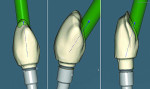 Fig 3. Wax-up, ASC screw-access correction, and digital cutback.