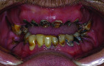 Pretreatment view of patient with chronic tooth decay.