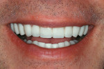 Figure 7  The provisional restorations (Radica) while in natural smile.