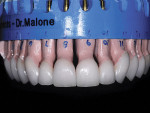 Figure 9  Completed IPS e.max Press lithium disilicate restorations on the laboratory model.