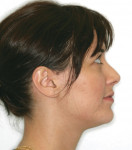 Figure 2B Pretreatment extraoral pho- tograph (profile view).