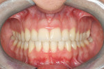 Figure 4H Posttreatment frontal intr oral photograph; the deep bite has improved from an initial 65% of lower incisor coverage to 8%.