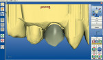 Figure 5  CEREC software proposal for a full crown on tooth No. 5.