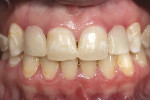 Figure 1  The patient as she presented pretreatment, wearing the existing partial denture. Note the decalcification and discoloration.