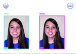 Before-and-after photos in Romexis Smile Design Software from Planmeca