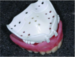 Fig 1 and 2. Select a tray that is closest to a denture that would fit the edentulous ridge. A common mistake is choosing a tray that overextends the vestibule.