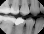Pretreatment full-mouth radiograph series of patient who was experiencing extreme discomfort and sensitivity from dry mouth. Note the rampant caries and gingival recession.