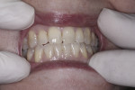 Patient after 2 weeks of twice daily use of Enamelon. Dryness was alleviated, more saliva was present, and the gingival tissues appeared healthier.