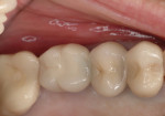 Patient presented with crown on the implant in the No. 14 position that was mobile and associated with 8-mm probing depths with bleeding on probing and suppuration.