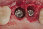 A combination of drills and BAOSFE was done to place a 5.0-mm x 11.0-mm implant in the site of tooth No. 14.
