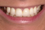Figure 17  The smile view shows the desired bright color with a subtle hint of the patient's orange hue showing.