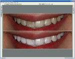 Figure 1  Screen capture of a whitening case using the Dentrix Cosmetic Imaging program. Image courtesy of Dentrix Image from DEXIS.