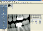 Figure 2  Screen capture of the Advanced Imaging module in EagleSoft. Image courtesy of Patterson Dental.