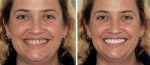 Figure 7  This patient wanted her whole smile redone but wanted to see what it might look like as she was unsure of what she wanted. After looking at photographs the author and the patient found aspects of smiles she liked and other things that she d