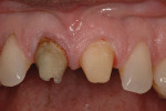 Close up view of staining and lower value of root canal treated tooth No. 8.