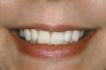 Figure 2  Pretreatment smile view.