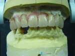 Fig 1 through Fig 4. The traditional immediate denture process requires technicians to conduct model surgery on mounted master casts. They then grind and set manufactured denture teeth one by one in their proper esthetic and functional positions.