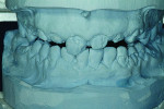 Fig 6 through Fig 8. This immediate digital denture process began with scanning the master casts.