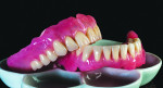 Fig 12. The dentures are cleaned and polished to evaluate for any residual stone or defects.