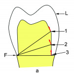 "Fig 6. When a load (L) is applied to the occlusal surface of the restoration, it wants to ""tip,"" or be dislodged, and the restoration will want to rotate around a fulcrum point (F)."